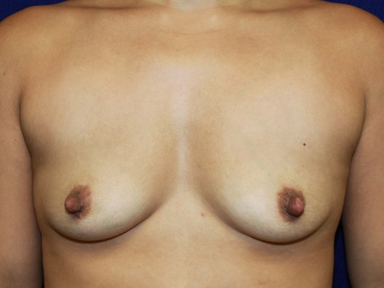 Silicone Gel 520 cc Before Breast Implants