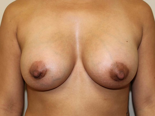 Silicone Gel 520 cc After Breast Implants