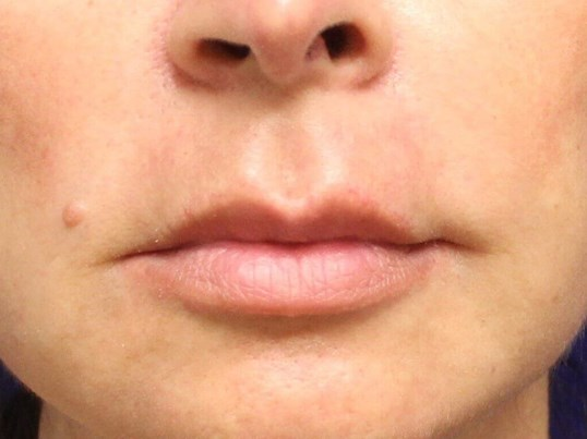 Lip Lift Before