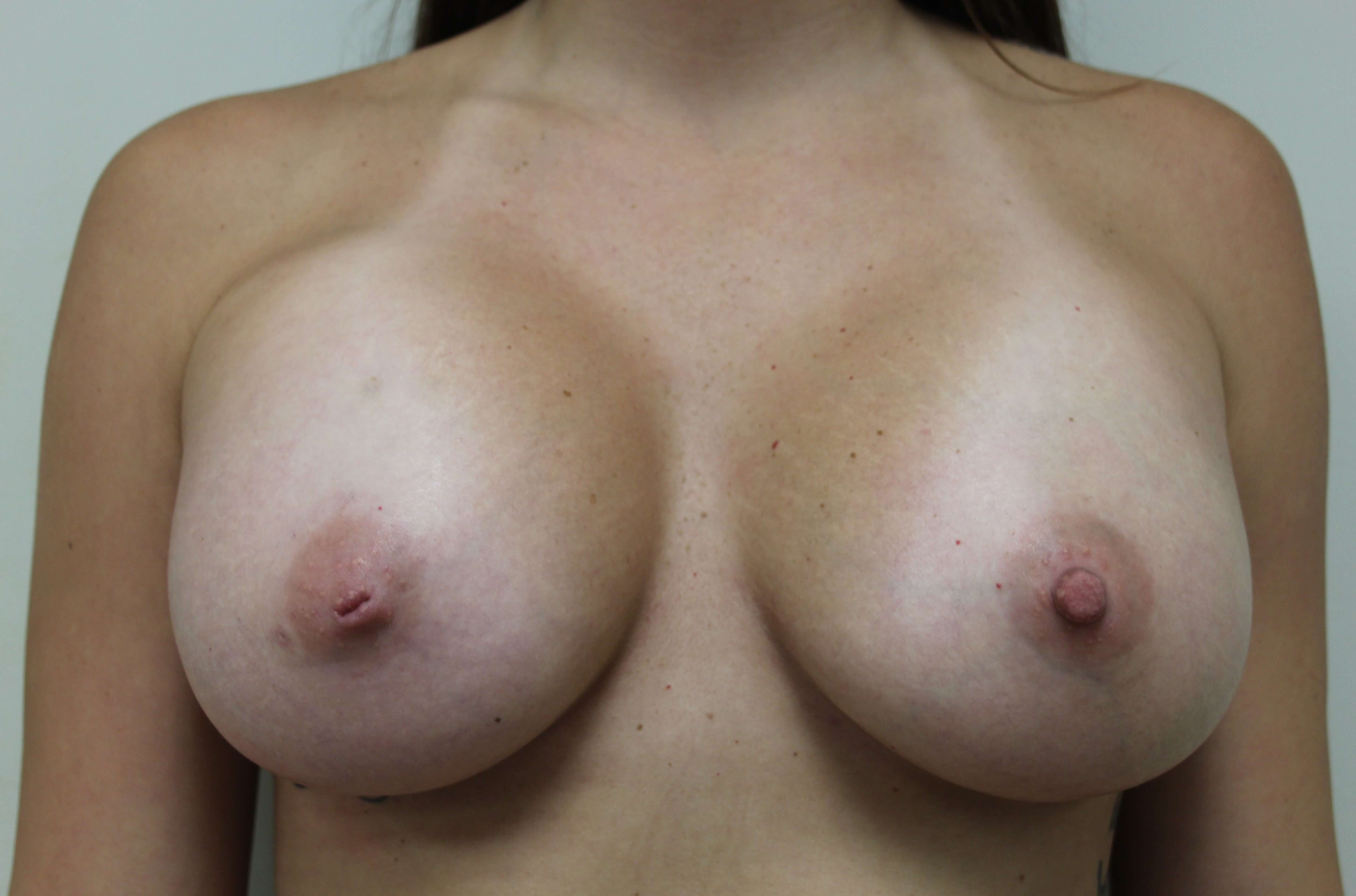 TUBA Breast Augmentation After