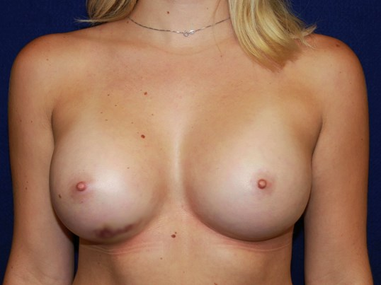 TUBA Breast Augmentation HP After Breast Implants