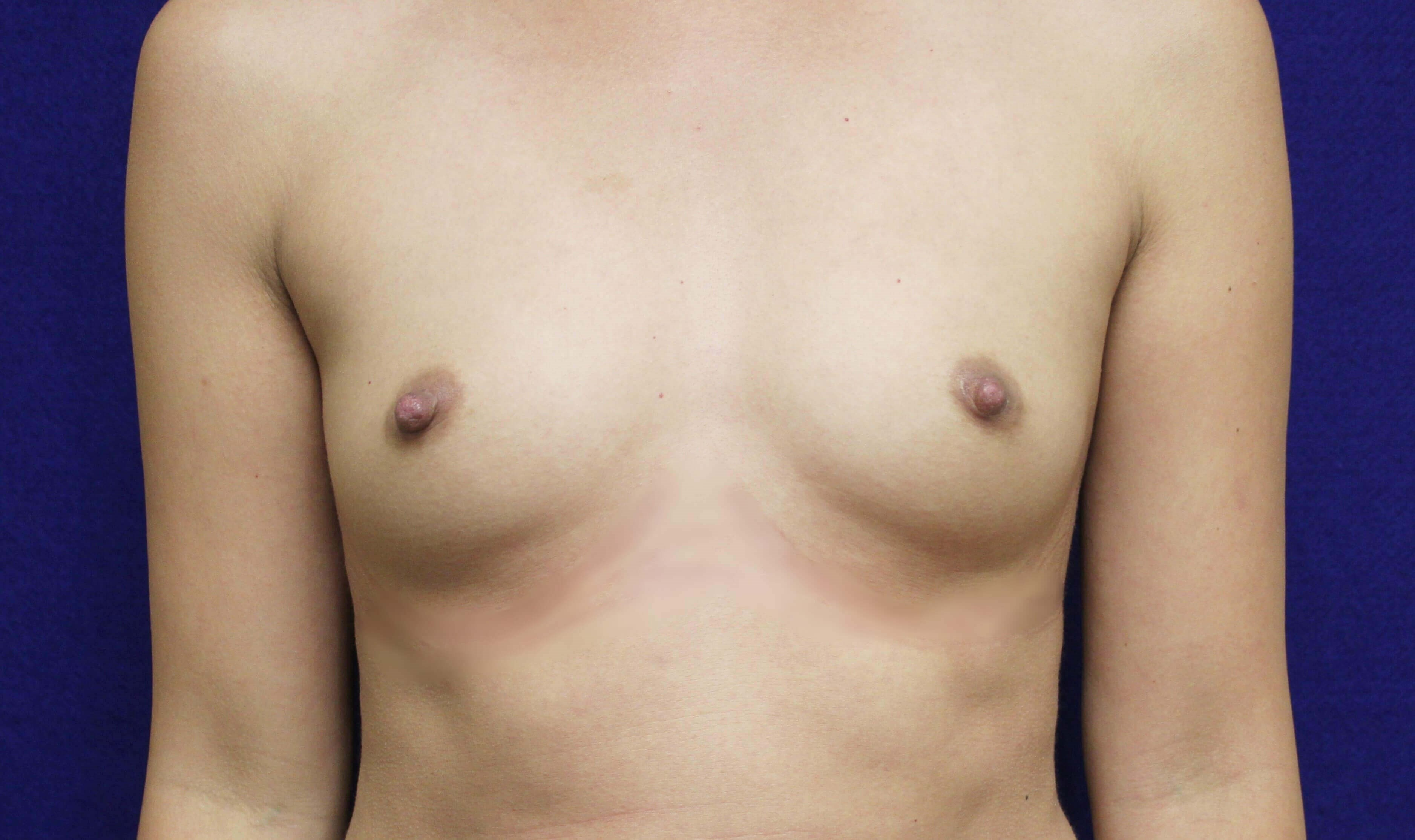 TUBA Breast Augmentation Before