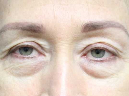 Blepharoplasty Upper & Lower Before