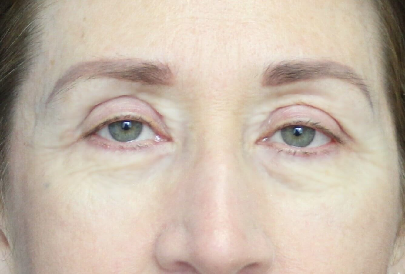 Blepharoplasty Upper & Lower After