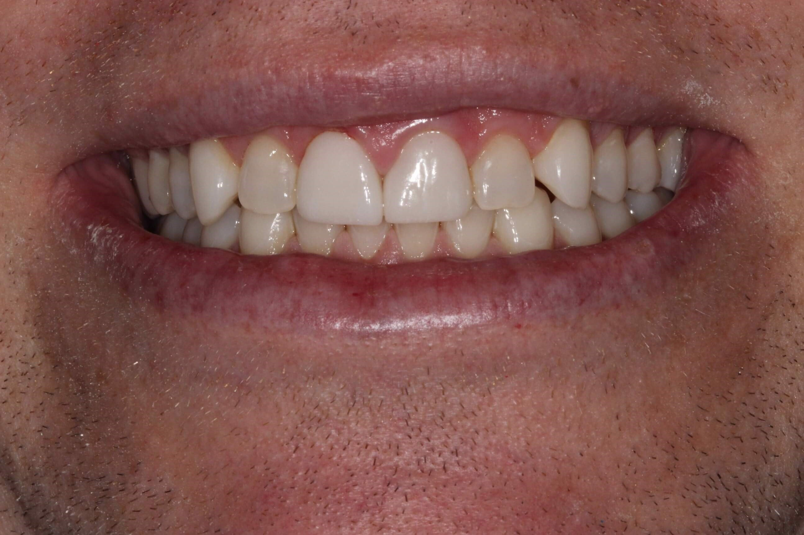 Two Veeners Improves Smile After