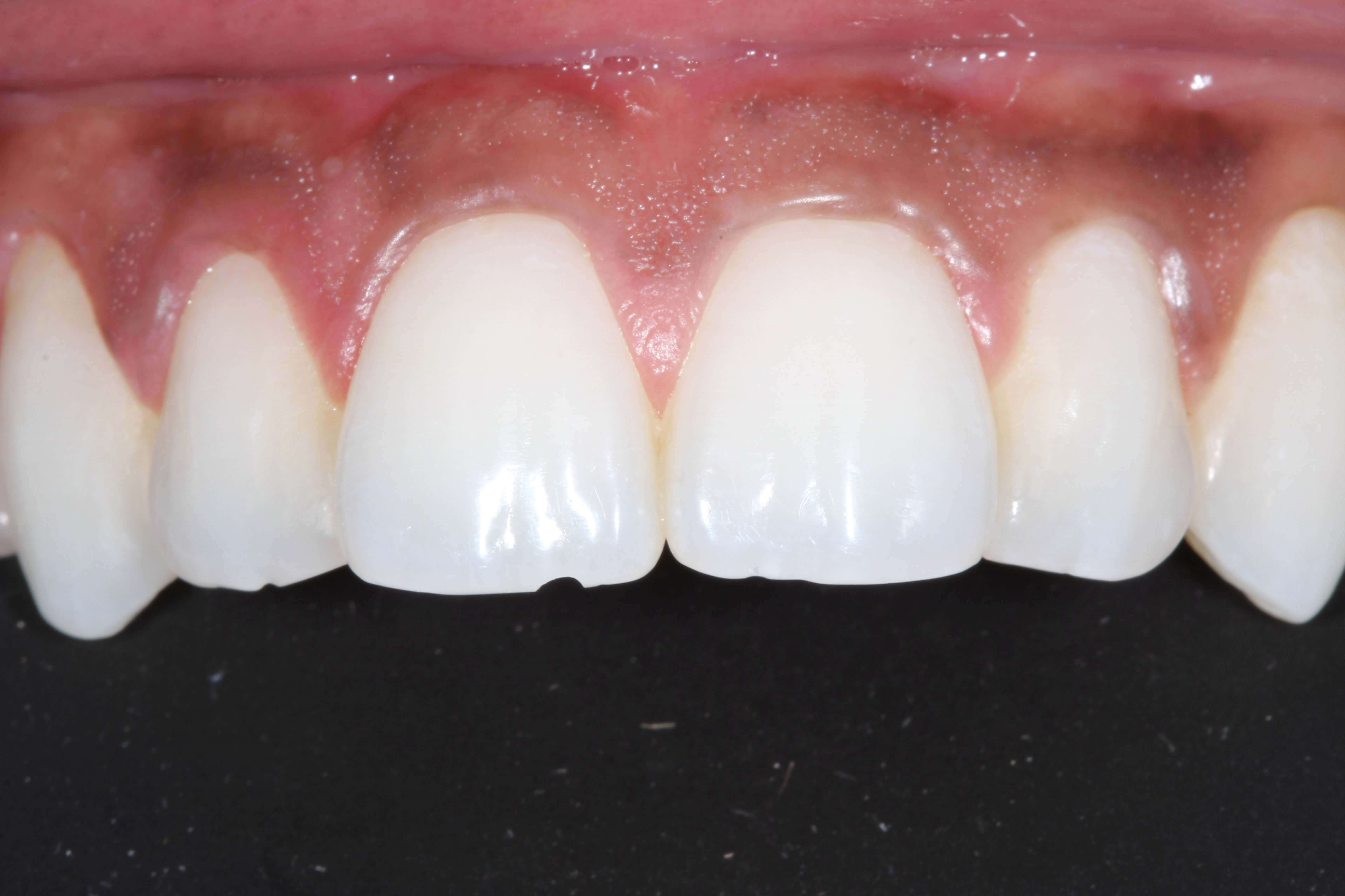 Chipped Tooth Bonded Before
