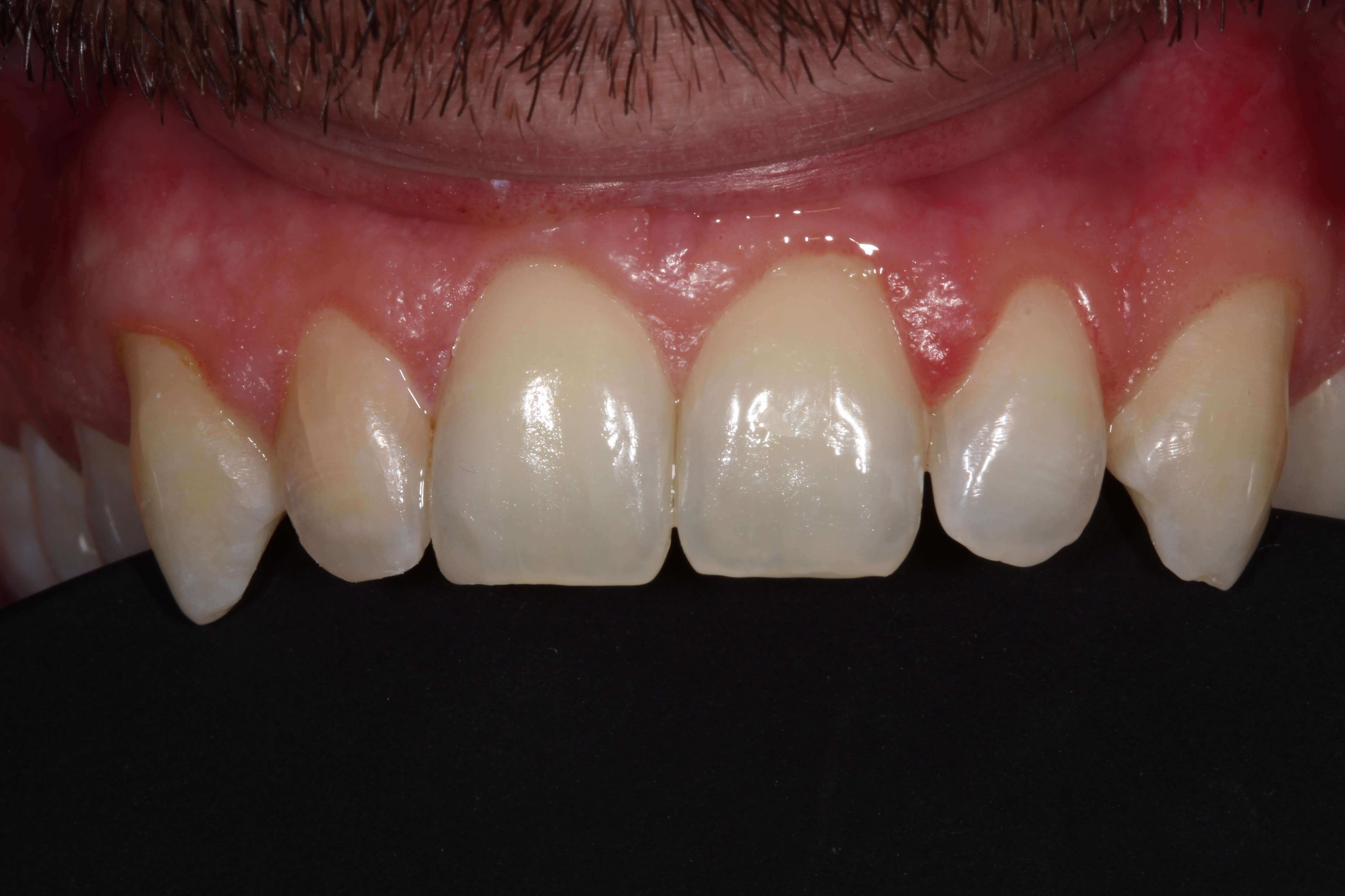 Chipped Tooth Bonded After