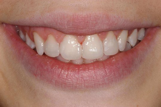 Gap Teeth Closed With Bonding After