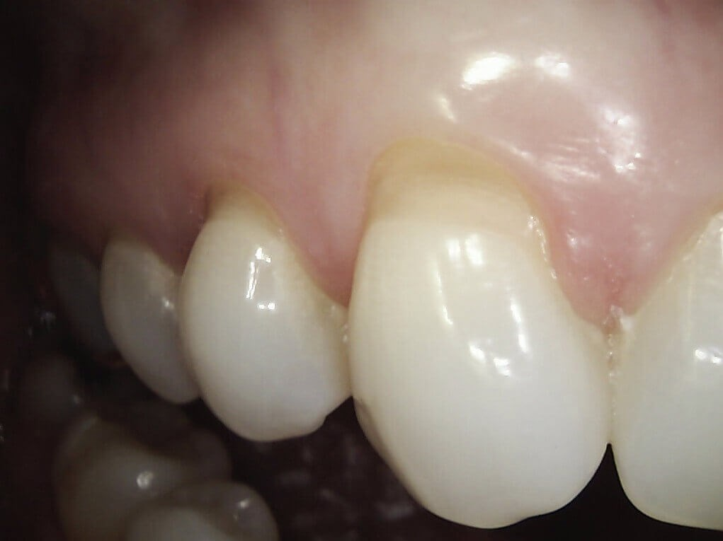 worn enamel replaced with tooth colored filling