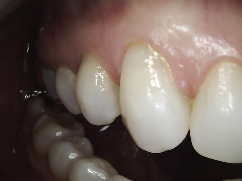 Worn Teeth Repaired After