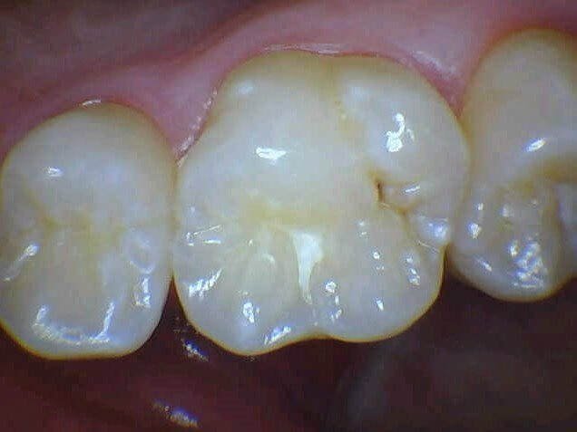 Cavity Filled With Bonding Before