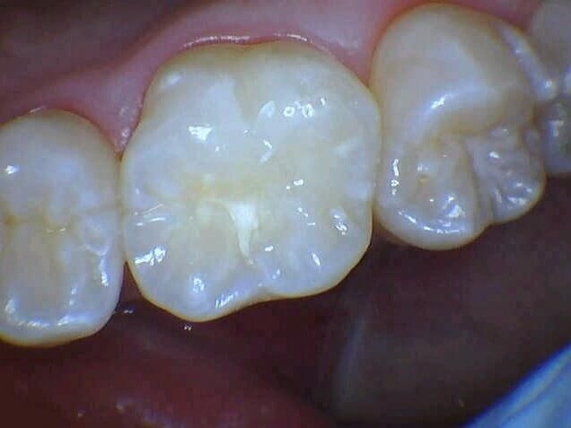 Cavity Filled With Bonding After