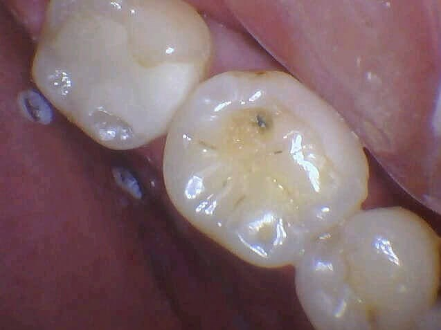Black Spot On Tooth Fixed Before