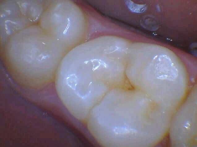 Cavity Gets Fixed Before