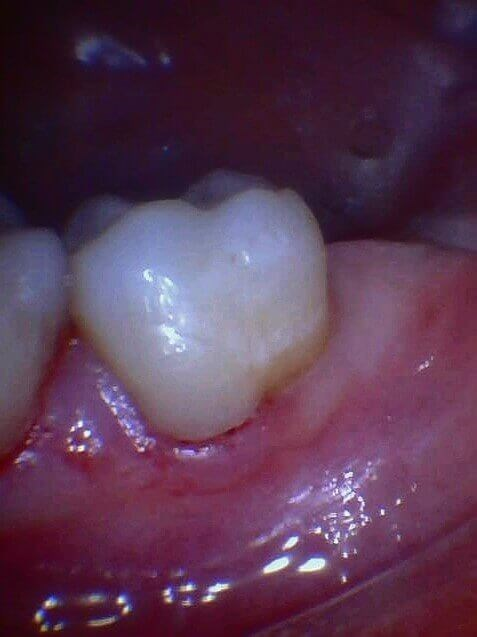 Cavity is Removed After