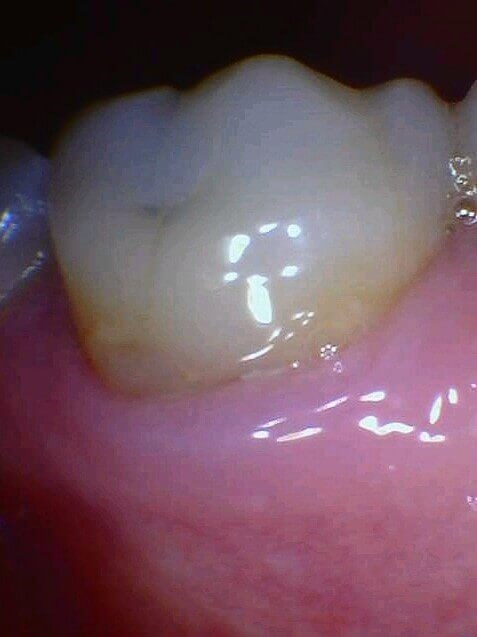 Cavity is Removed Before