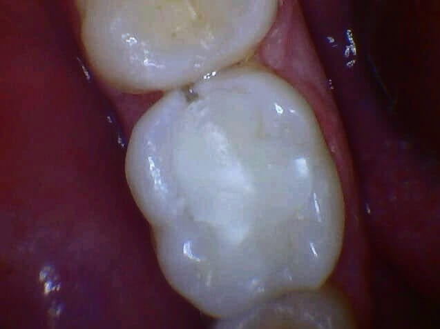 Decayed Tooth Crowned Before