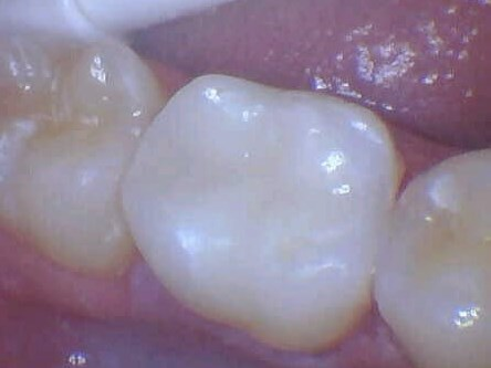 Decayed Tooth Crowned After