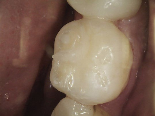 Worn Tooth Gets Fixed After