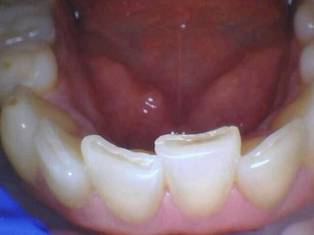 Worn Out Teeth Is Repaired Before