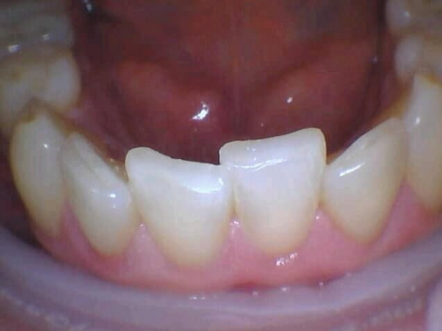 Worn Out Teeth Is Repaired After