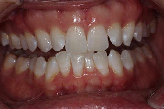 Crowded Teeth Straigthened Before