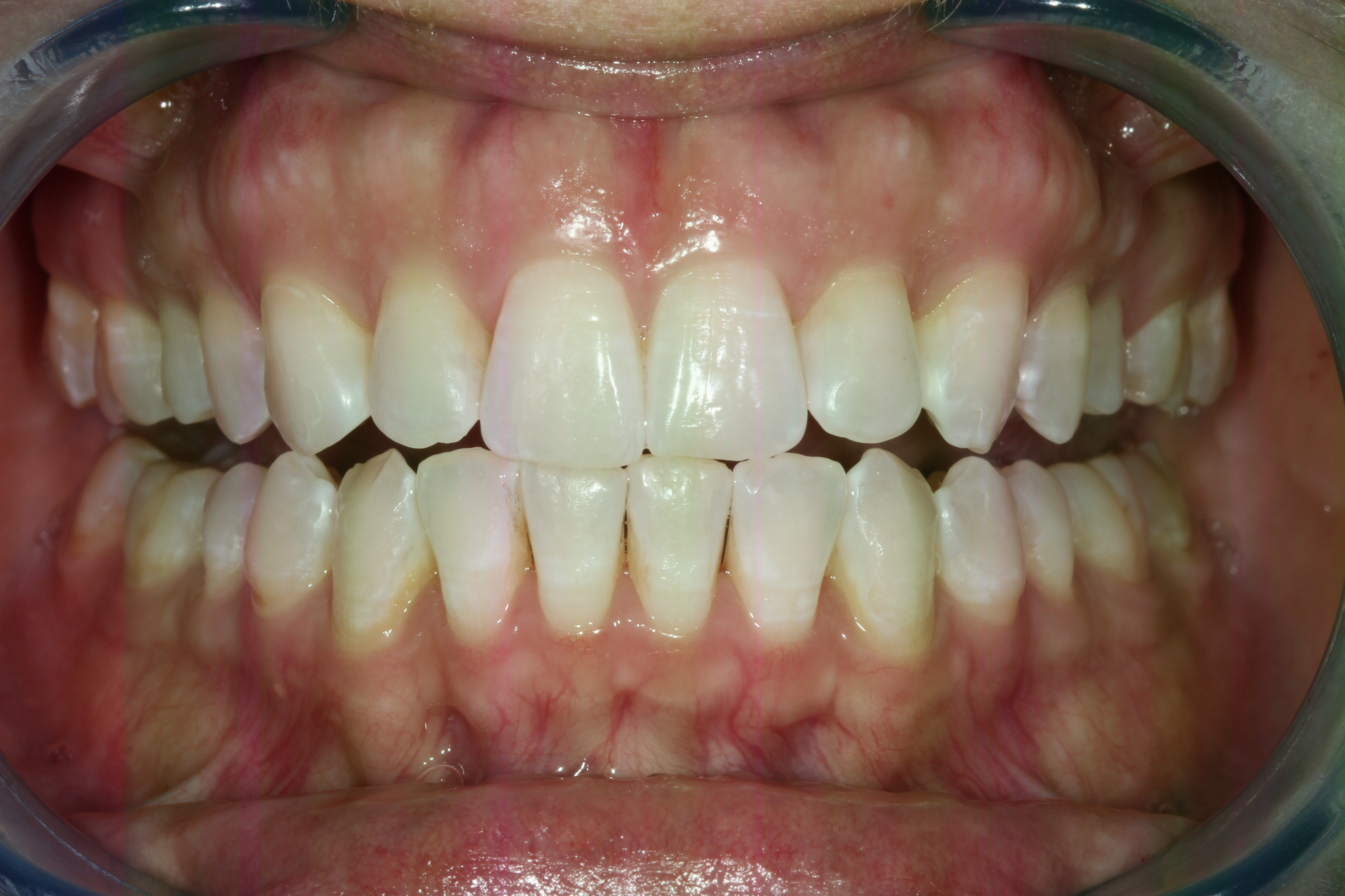 Crowded Teeth Straigthened After