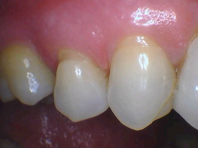 Sensitive Tooth Is Bonded Before