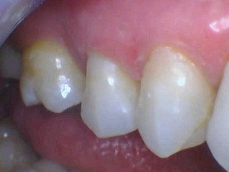 Sensitive Tooth Is Bonded After