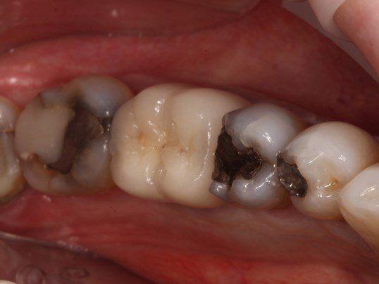Tribeca Woman Saves Tooth Before