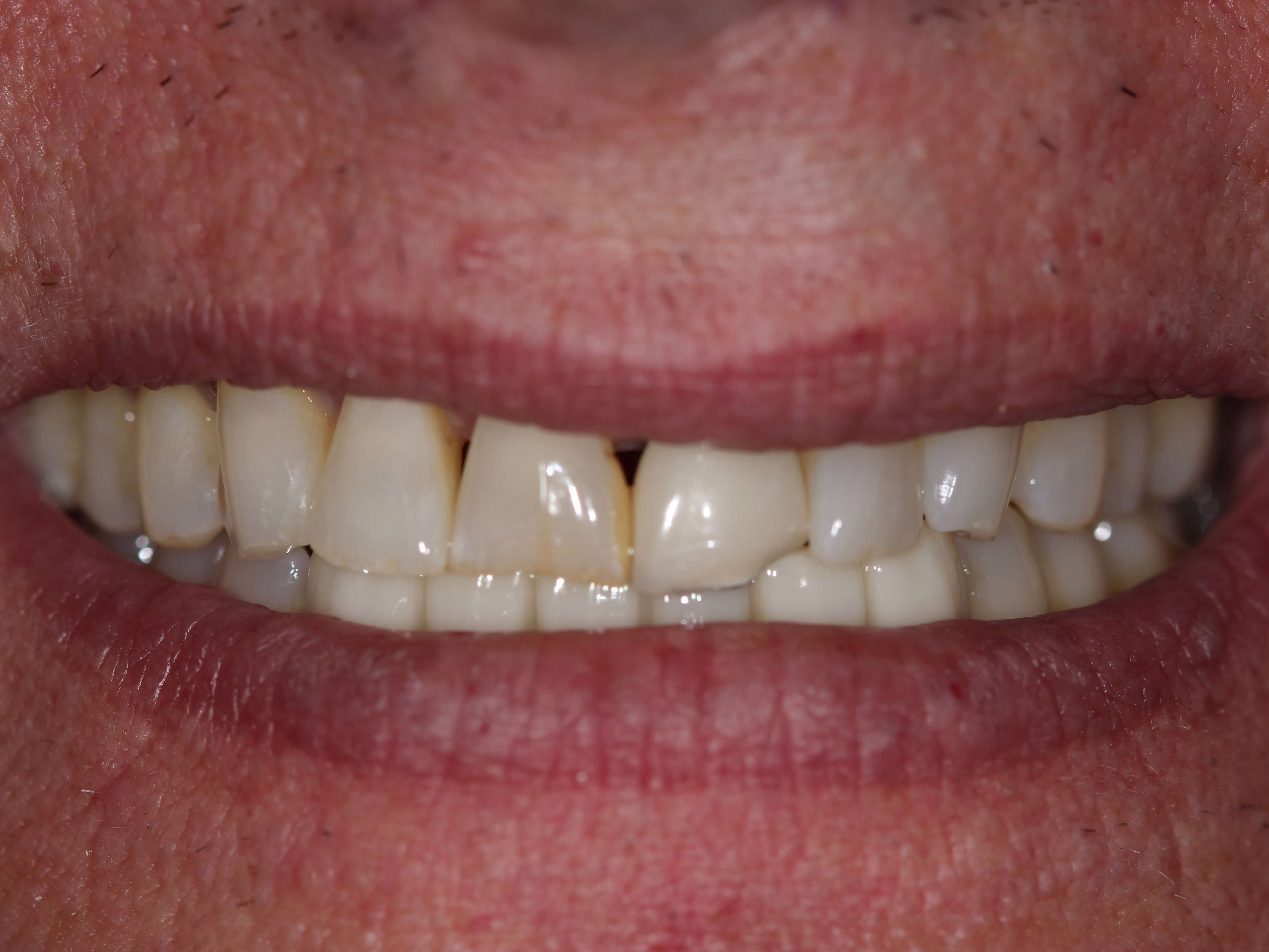Complete Smile Makeover Before