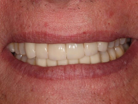 Complete Smile Makeover After