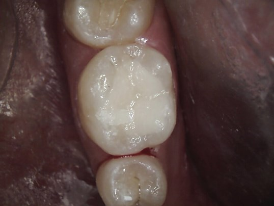Soho Mom Has Sensitive Tooth After