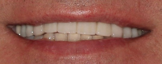 Tribeca Man Smile Makeover After