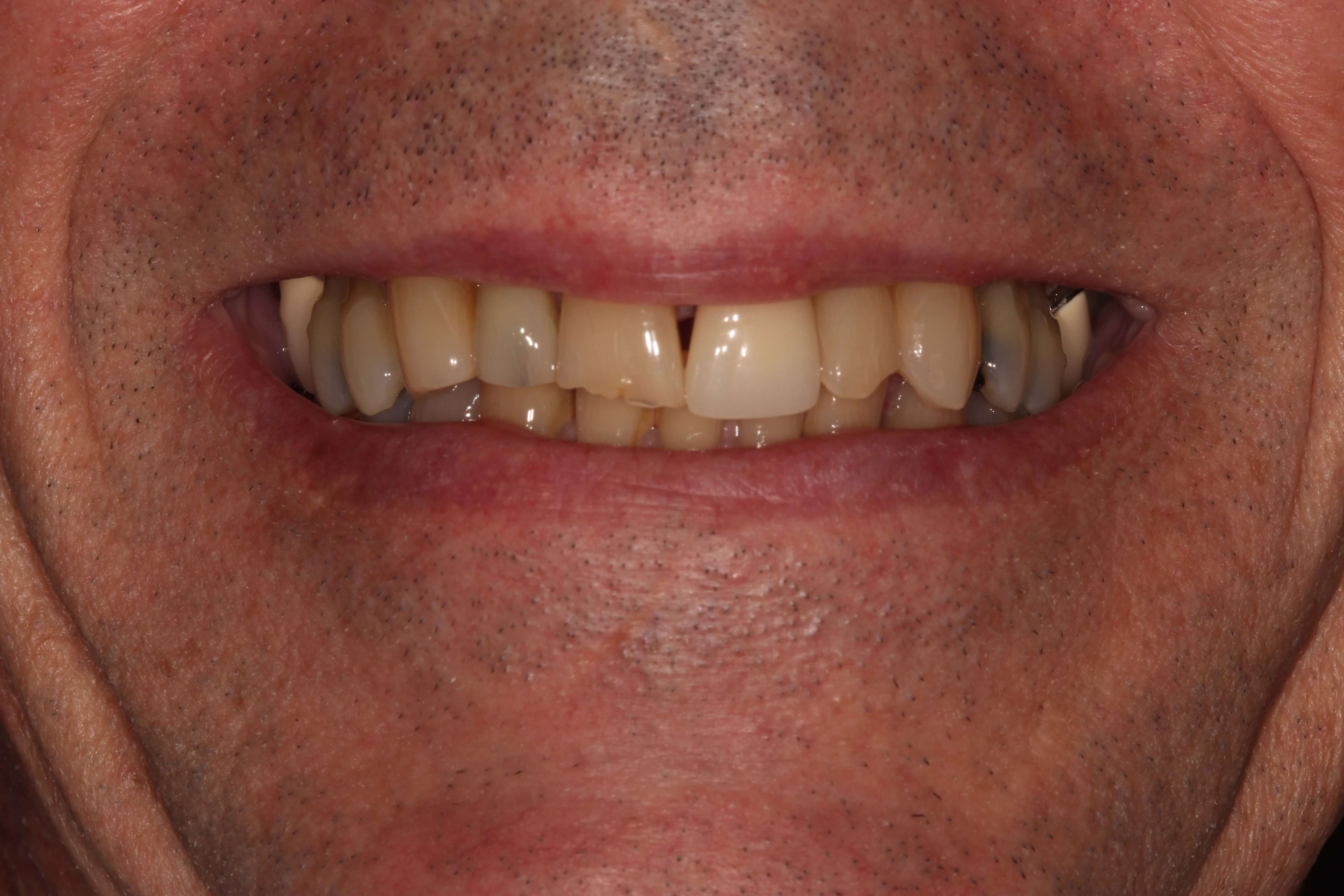 Tribeca Man fix front tooth Before
