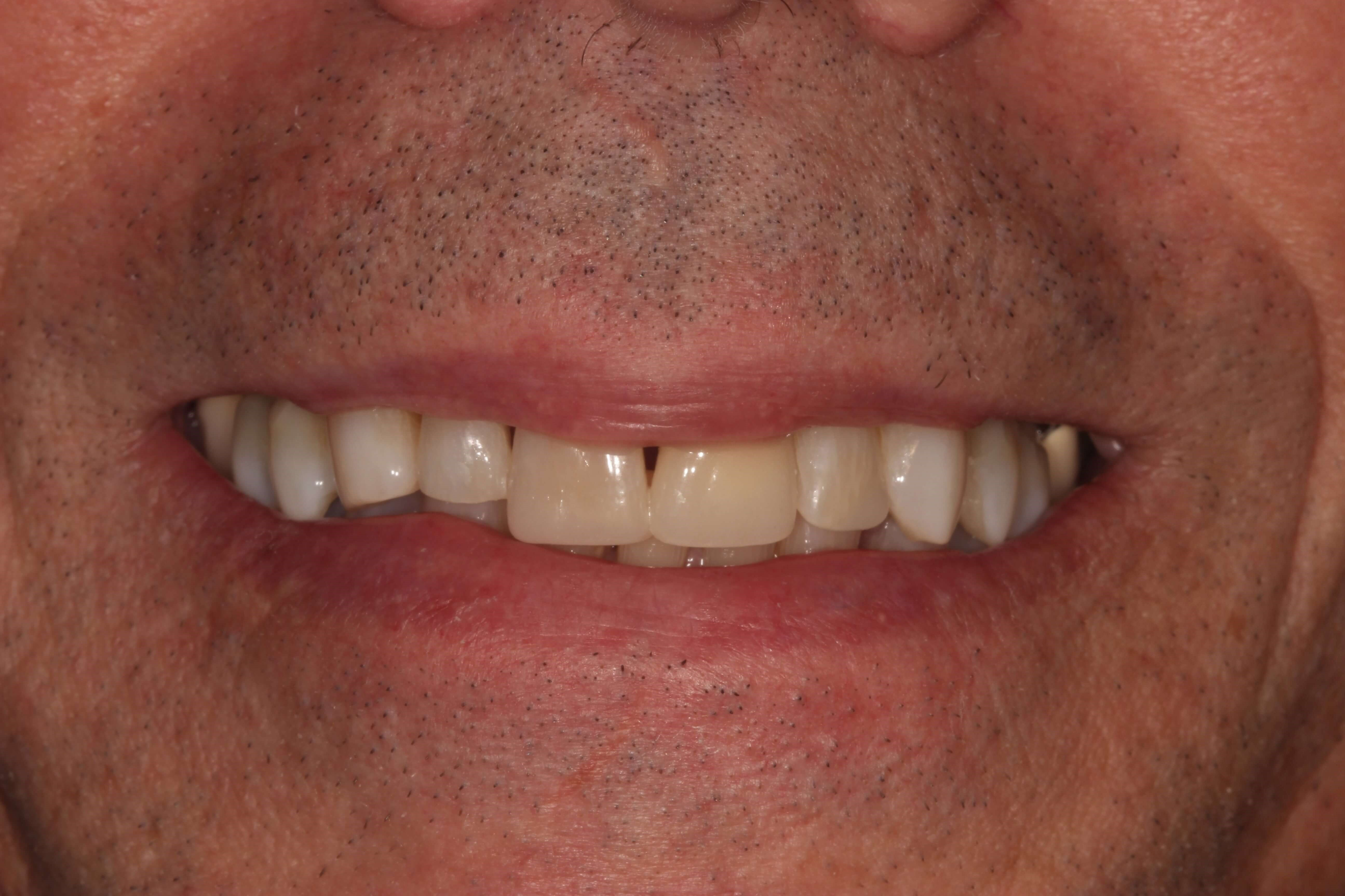 Tribeca Man fix front tooth After