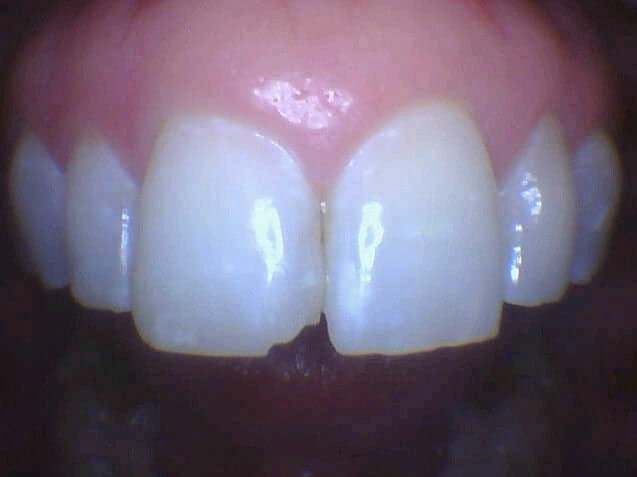 Soho Woman Chipped Front Tooth Before