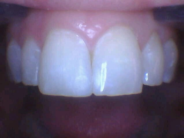 Soho Woman Chipped Front Tooth After