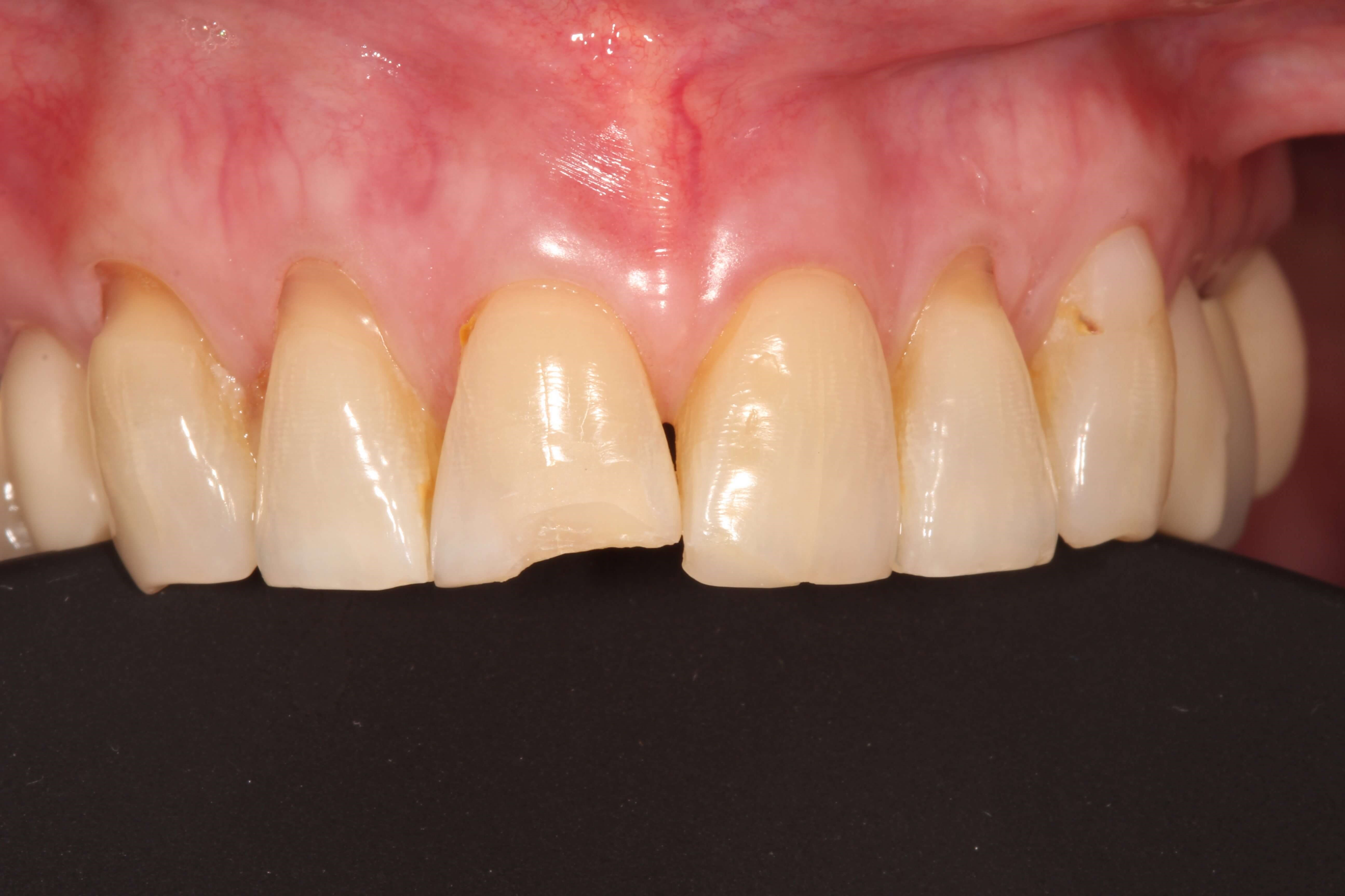 Chipped Front Tooth bonded Before