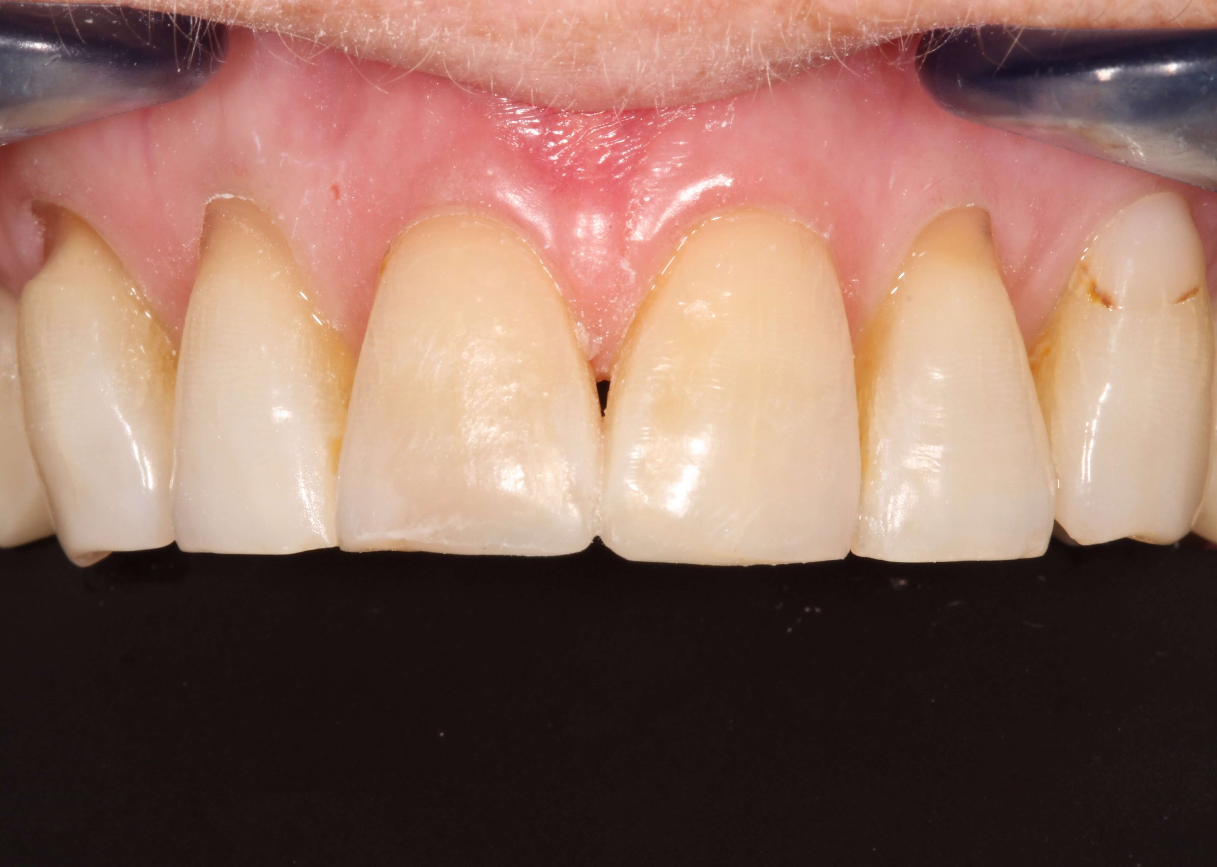 Chipped Front Tooth bonded After