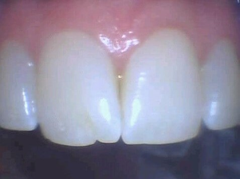 Tribeca Man Fix Chip Tooth Before