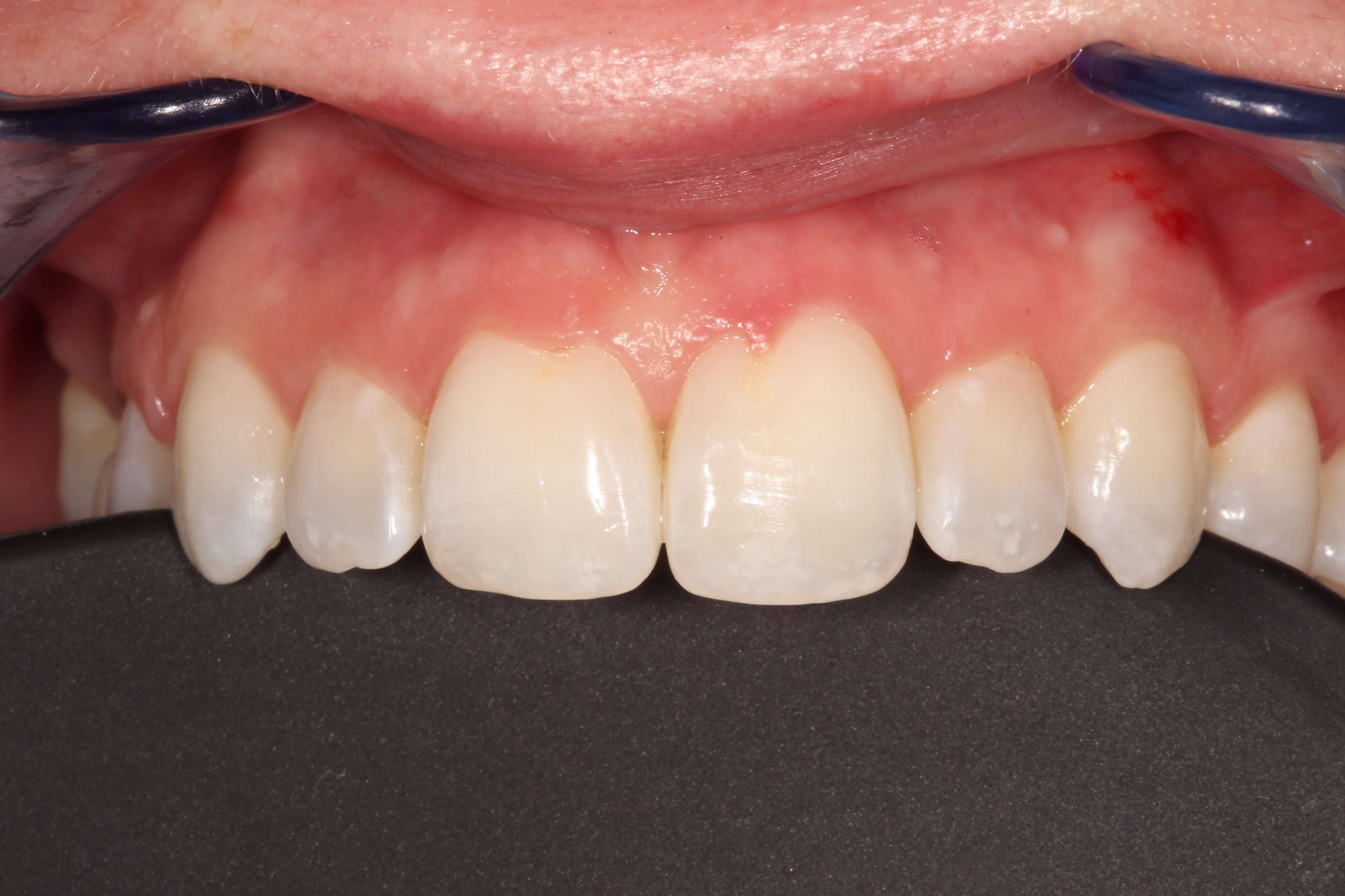 Tribeca Woman Fix Gummy Smile Before