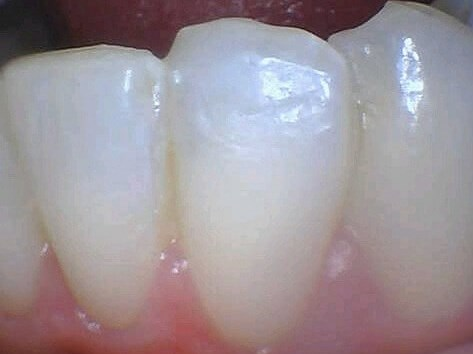 Tribeca woman Fix Chip Tooth After