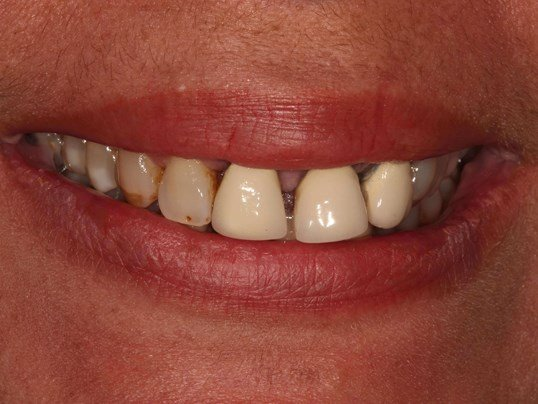 Gorgeous Dental Veeners Before