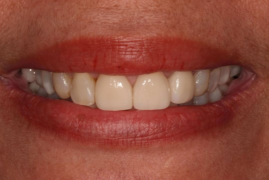 Gorgeous Dental Veeners After