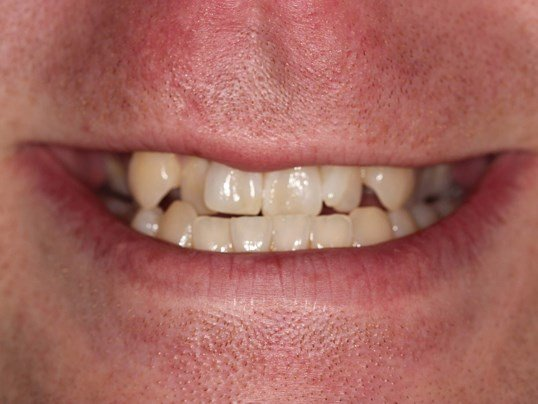 Tribeca Invisalign Case Before