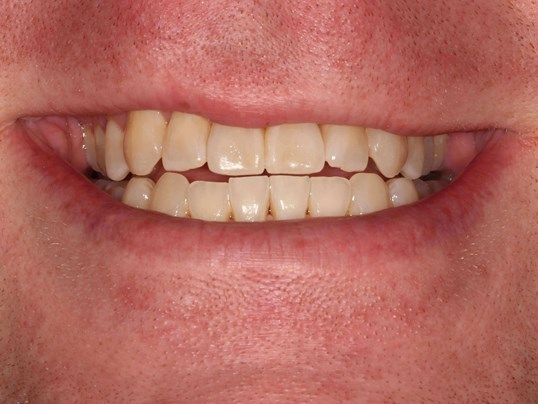 Tribeca Invisalign Case After