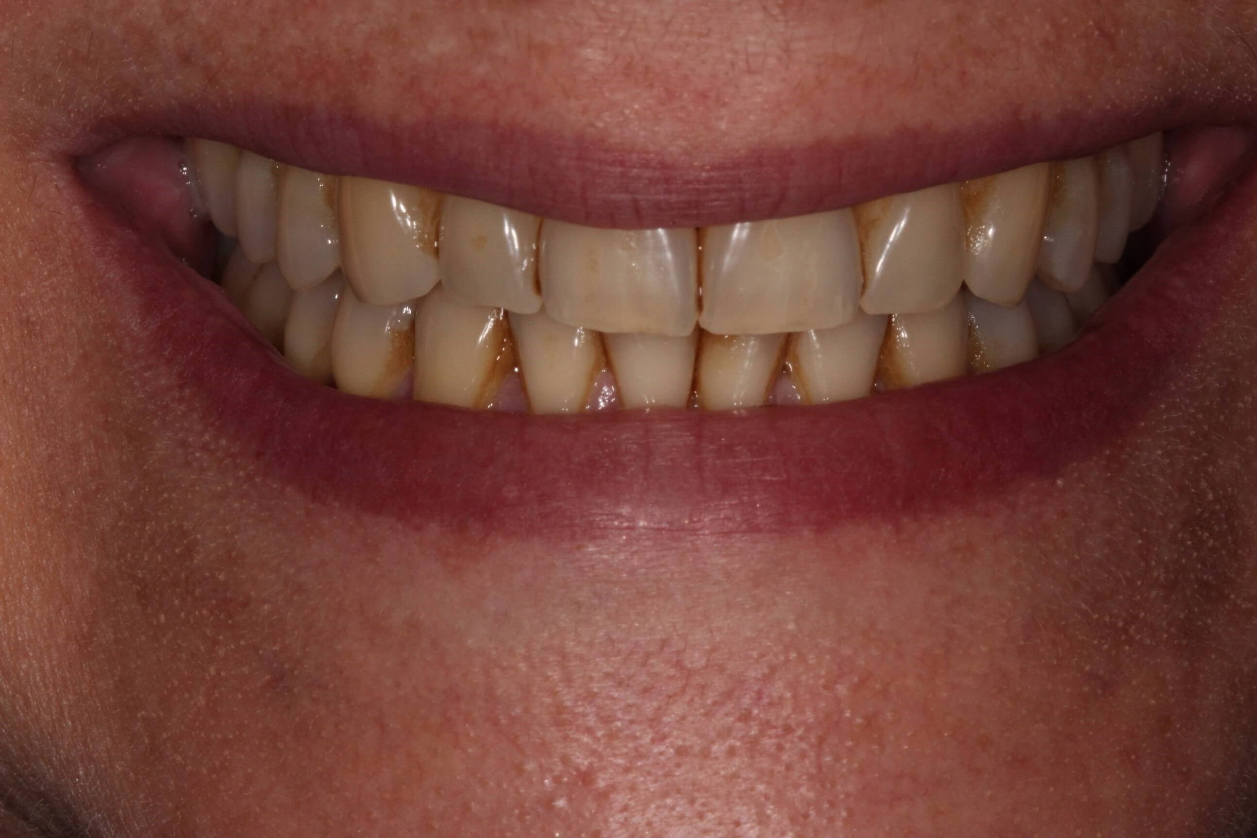 Whiter Smile In Tribeca Before