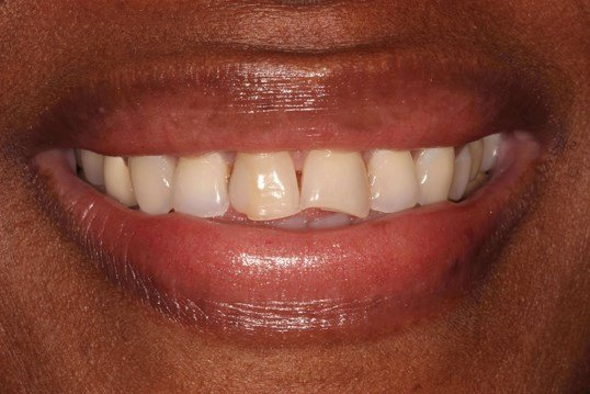 Chipped Tooth Restored Before