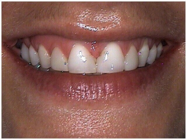 Tribeca Smile Makeover Before
